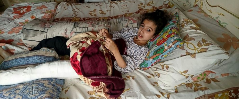 PHOTO: A handout picture taken by a family member and released by human rights organization Amnesty International on August 13, 2016 shows Syrian girl Ghina Ahmad Wadi resting at her home in the Syrian city of Madaya.