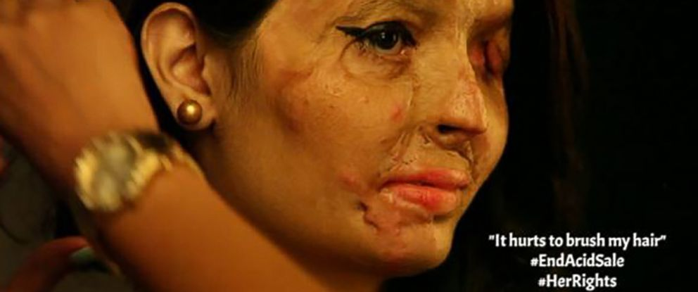 PHOTO:Reshma Qureshi, who was the victim of acid attack, will be walking the runway during New York Fashion Week. This image taken from the Make Love Not Scars Instagram site.