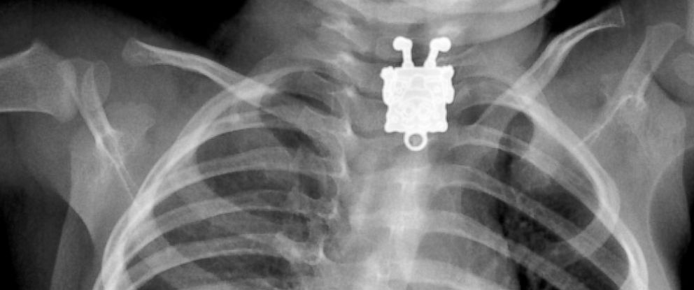 PHOTO: This X-ray image from Radiopaedia.org shows a foreign body swallowed by a 16-month-old boy.