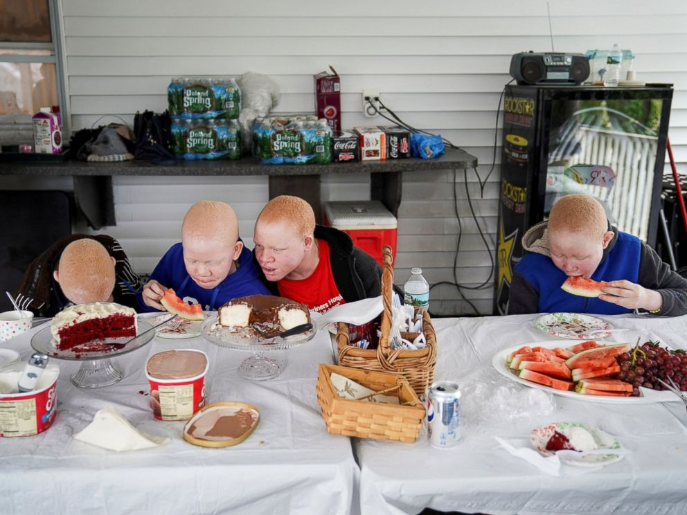 Baraka Lusambo, 7, Mwigulu Magesaa 14, Emmanuel Rutema, 15, and Pendo Noni 16, Tanzanians with albinism who had body parts chopped off in witchcraft-driven attacks, eat dinner at a home in the Staten Island borough of New York, June 4, 2017.