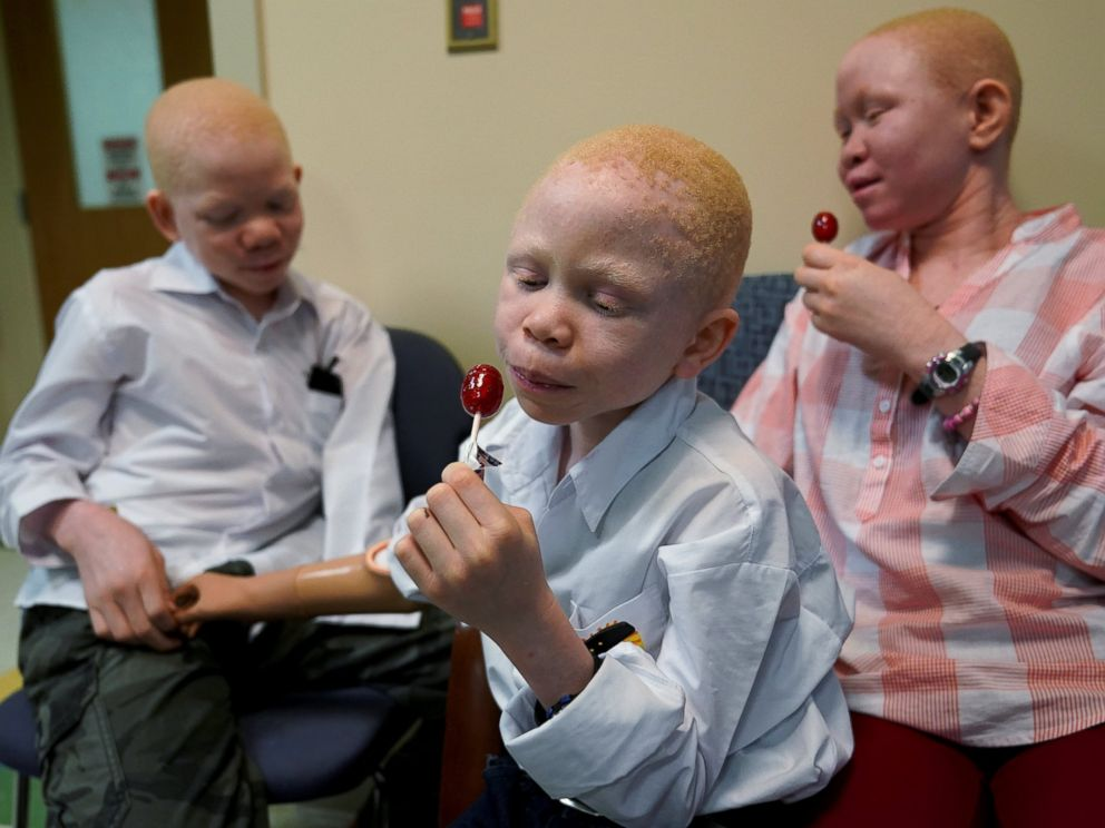 PHOTO: Mwigulu Magesaa, left, Baraka Lusambo, center, and Pendo Noni, wait in the lobby during prosthetic arm fittings at the Shriners Hospital in Philadelphia, May 30, 2017.