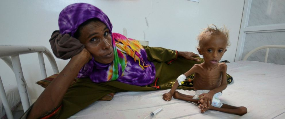 PHOTO: A woman rests on a bed next to her malnourished son at a hospital in the Red Sea port city of Houdieda, Yemen, Sept. 9, 2016.