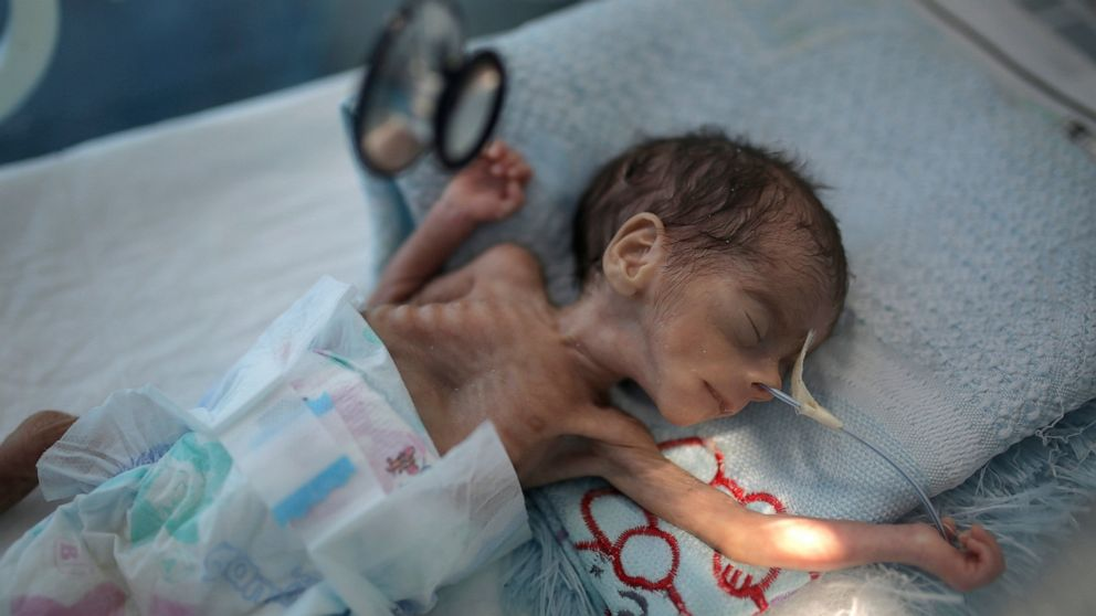 UNICEF: Millions of Yemeni youngsters might starve amid pandemic thumbnail