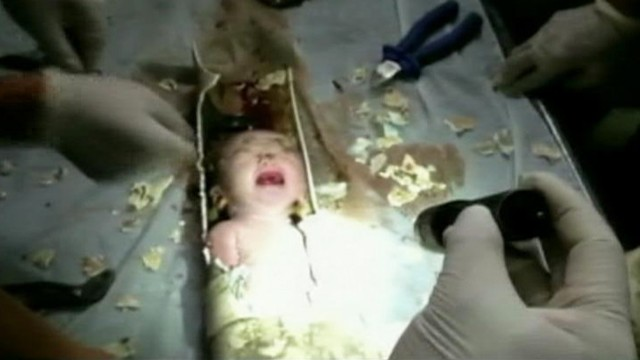 Newborn Baby Rescued From Toilet Pipe in China