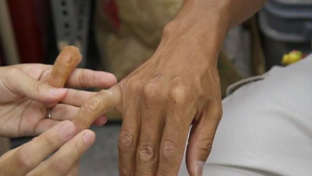 Prosthetic Fingers Help Reform Japan's Feared Yakuza
