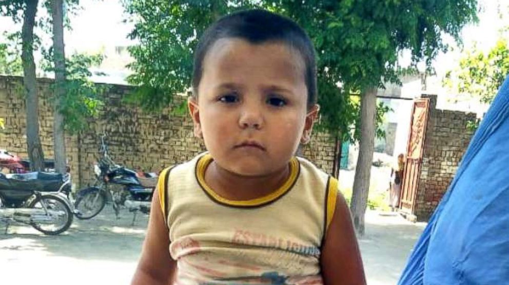 Abid Ullah, 3, was diagnosed with polio in 2016 when he was 18 months old.