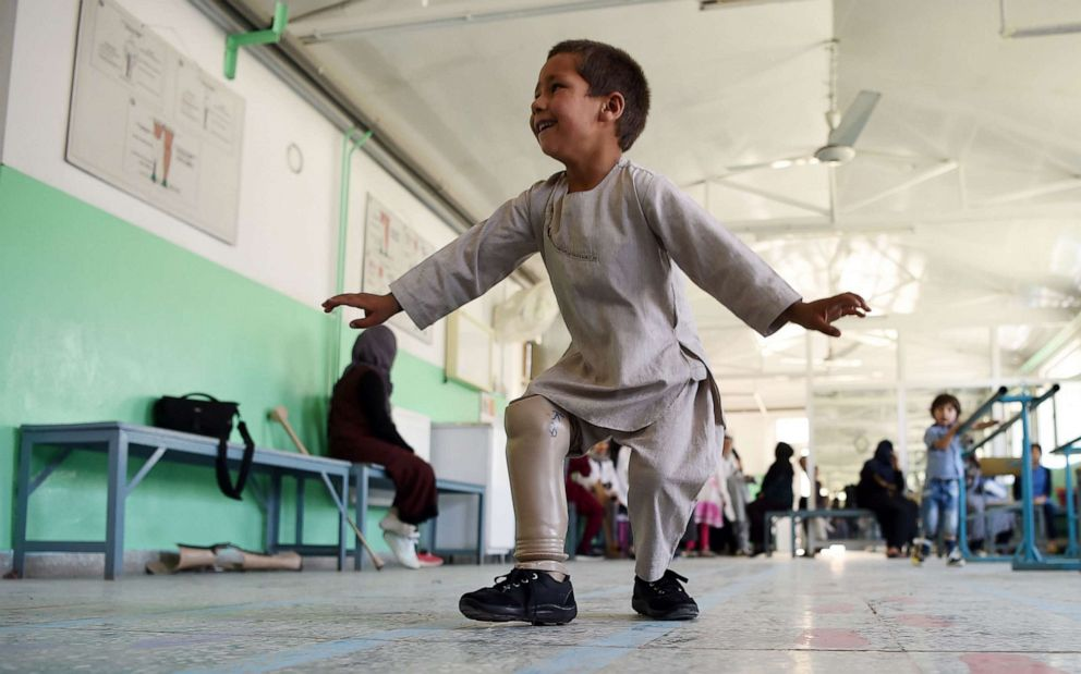 PHOTO: Ahmad Rahman, an Afghan boy who lost his right leg when he got caught in the crossfire dances with his prosthetic leg at the International Committee of the Red Cross clinic in Kabul on May 7, 2019.