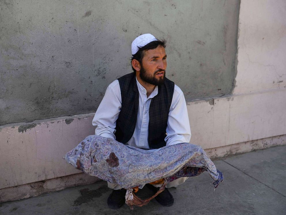 PHOTO: An Afghan man holds the body of a child killed when a bus hit a roadside bomb on the Kandahar-Herat highway, at a hospital in Herat on July 31, 2019.