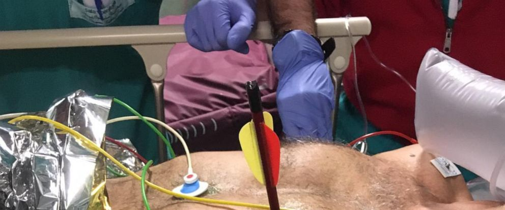 PHOTO: An Italian man survived surgery in a Turin, Italy hospital to remove an arrow in his chest that had punctured his heart and lung.