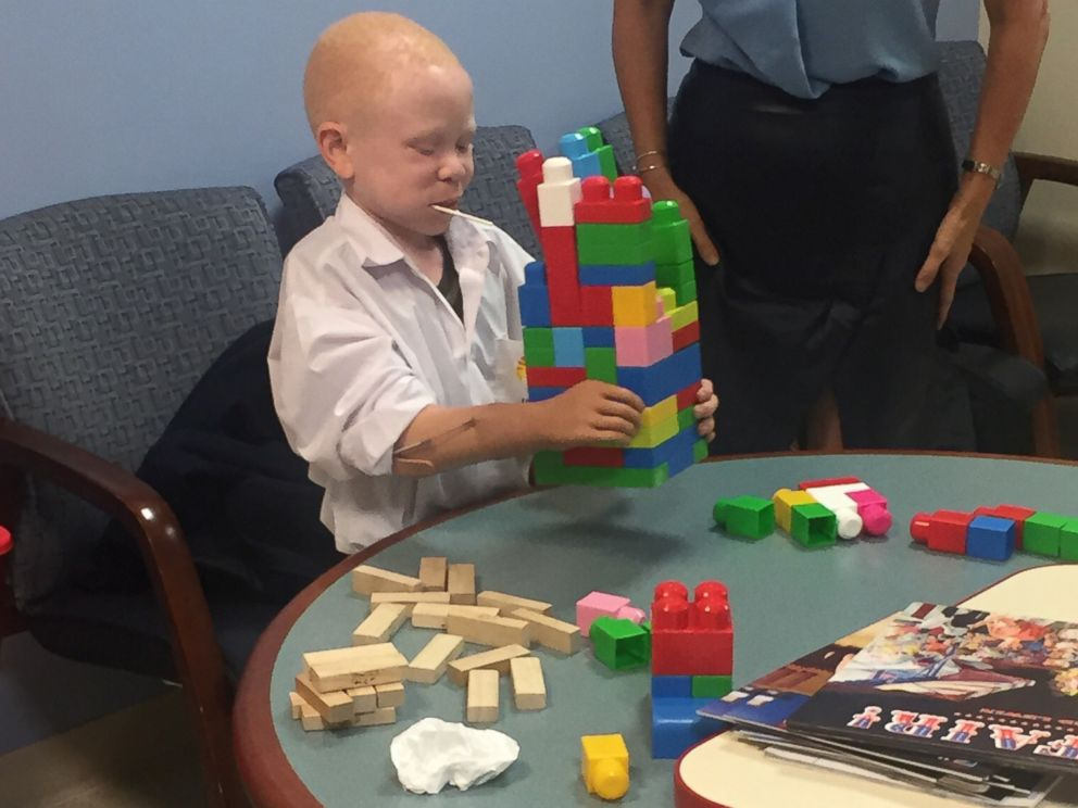 PHOTO: Baraka, a child from Tanzania whose arm was cut off because he has albinism, plays using his new prosthetic arm at Shriners Hospital for Children.