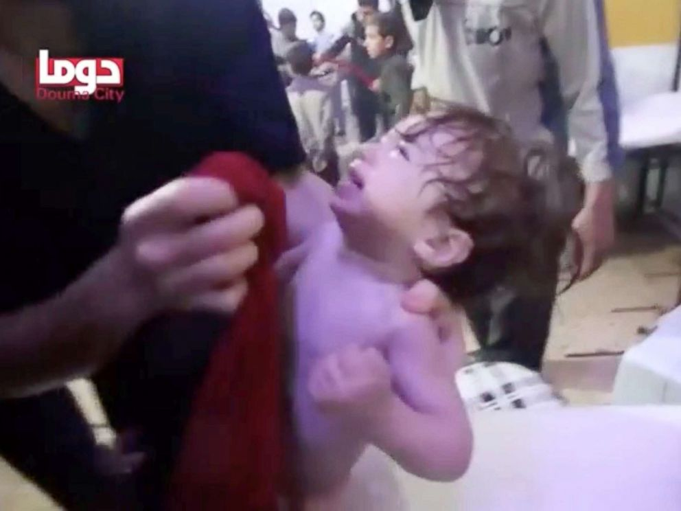PHOTO: A child cries as they have their face wiped following alleged chemical weapons attack, in what is said to be Douma, Syria in this still image from video obtained by Reuters, April 8, 2018.