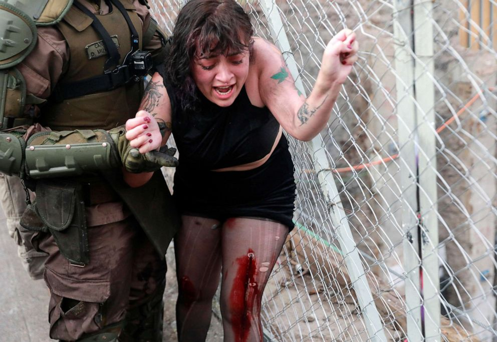 PHOTO: Riot police officer detains Camila Miranda after she was shot with 6 rubber bullets, 4 of which pierced her skin during a protest against Chiles government in Santiago, Chile, Nov. 4, 2019.