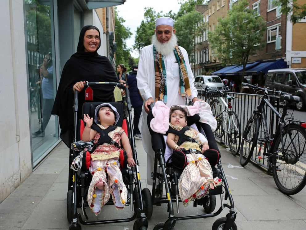 PHOTO: Two-year-old twins, born joined at the head, leave the hospital after a successful surgery at a British hospital in London, on July 1, 2019, in this handout photo released on July 16, 2019.