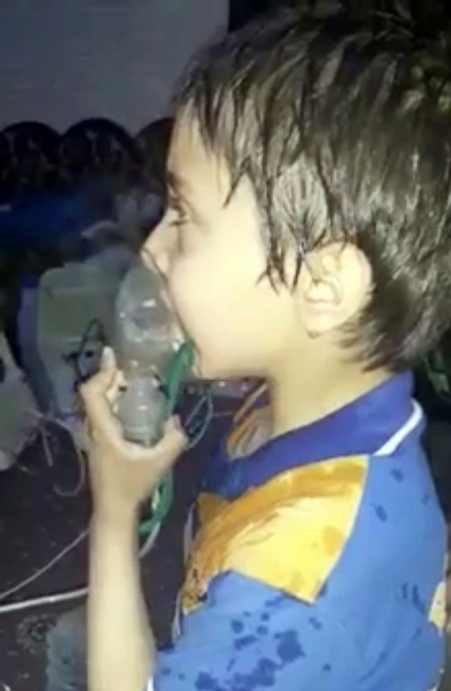 PHOTO: This image made from video released by the Syrian Civil Defense White Helmets, which has been authenticated based on its contents and other AP reporting, shows a toddler given oxygen through respirators, in eastern Ghouta, Syria, April 8, 2018.