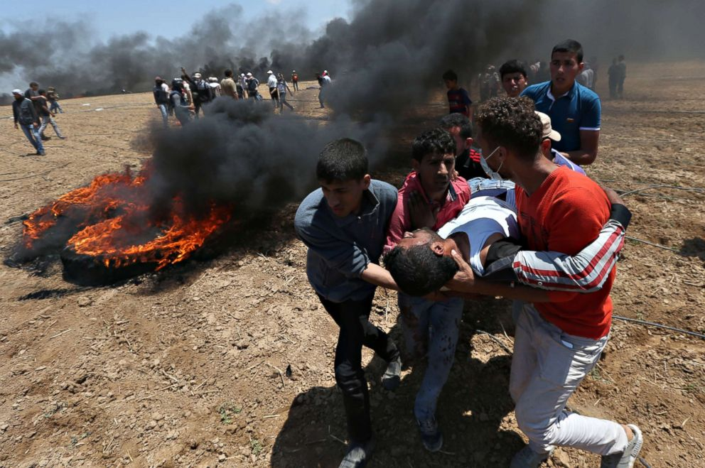 PHOTO: A wounded Palestinian demonstrator is evacuated during a protest against U.S. embassy move to Jerusalem in the southern Gaza Strip May 14, 2018.