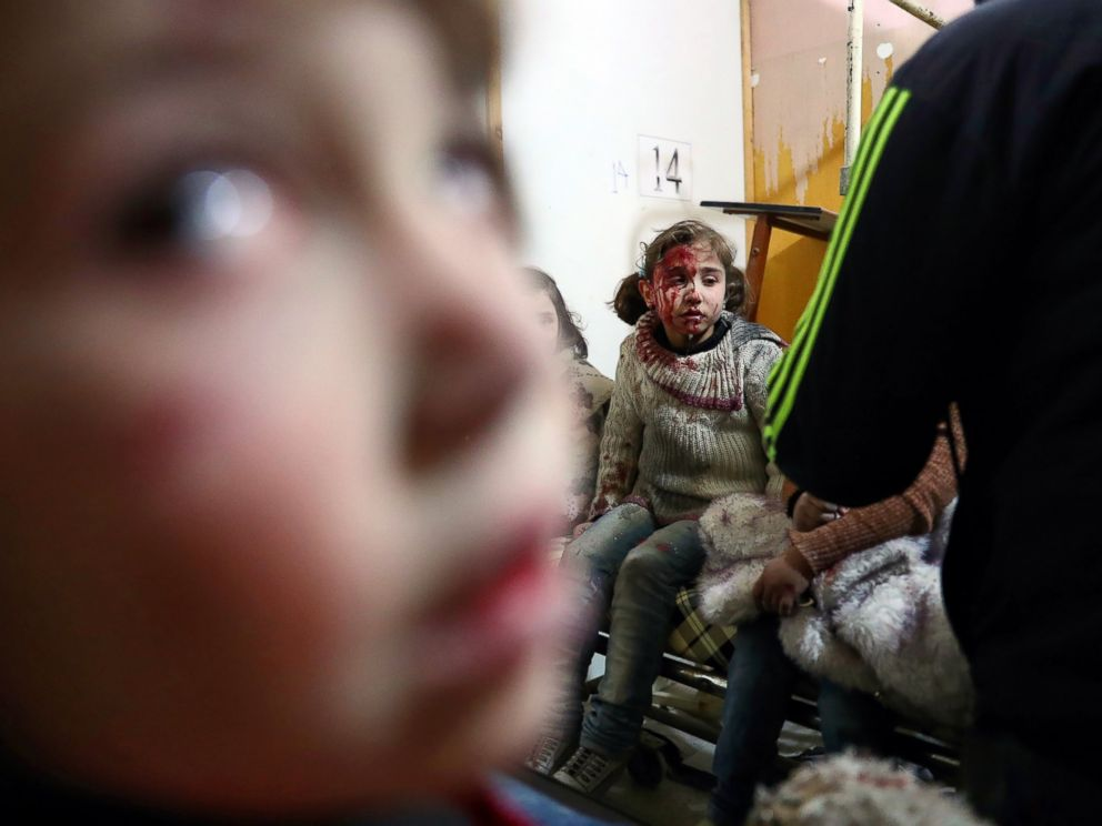 PHOTO: Wounded Syrian girls await treatment at a make-shift hospital following reported government airstrike on the rebel-held town of Douma, on the eastern outskirts of the capital Damascus, Feb. 25, 2017.