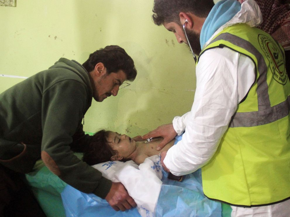 PHOTO: An unconscious Syrian child receives treatment at a hospital in Khan Sheikhun, a rebel-held town in the northwestern Syrian Idlib province, following a suspected toxic gas attack on April 4, 2017.