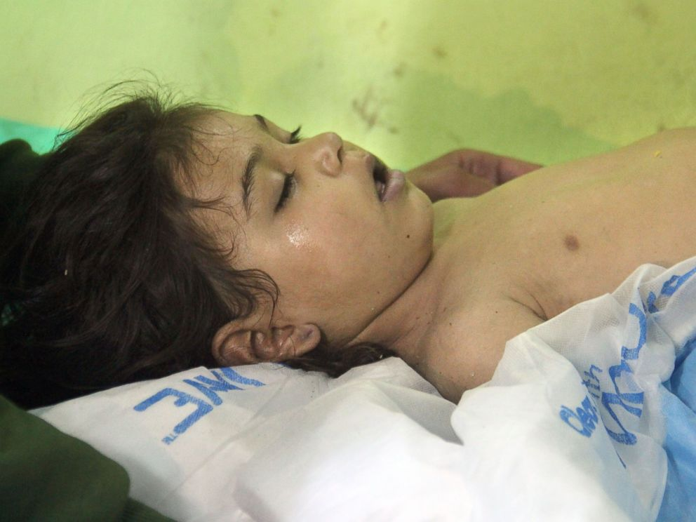 PHOTO: An unconscious Syrian child receives treatment at a hospital in Khan Sheikhun, a rebel-held town in the northwestern Syrian Idlib province, following a suspected chemical attack on April 4, 2017.