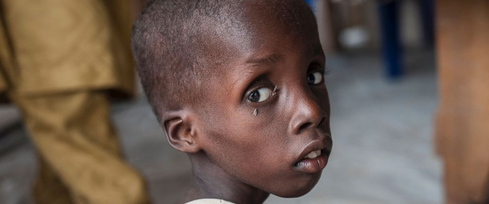 PHOTO: A boy suffering from severe acute malnutrition sitting at one of the Unicef nutrition clinics, in the Muna informal settlement, which houses nearly 16,000 internally displaced people in the outskirts of in Nigeria, June 30, 2016.