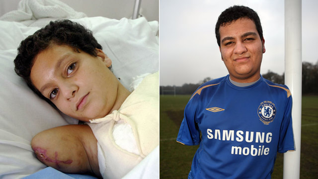 PHOTO: Iraqi Ali Ismail Abbas poses for a picture at Al-Babtain Burns Centre in Kuwiat City in this May 15, 2003 file photo, and right, Abbas, 17, plays football at school in London in December 2008.
