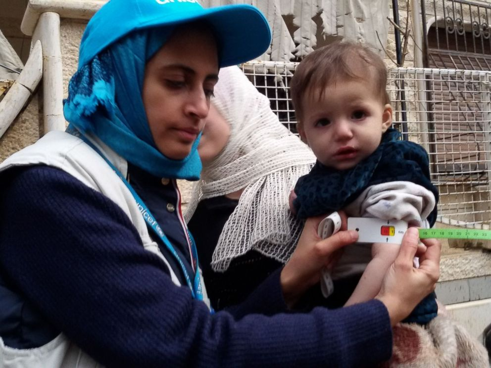 PHOTO: A photo released on Jan. 14, 2016 shows a UNICEF employee measuring the arm of a malnourished child in the besieged Syrian town of Madaya during an assessment of the health situation of residents of the famine-stricken town.