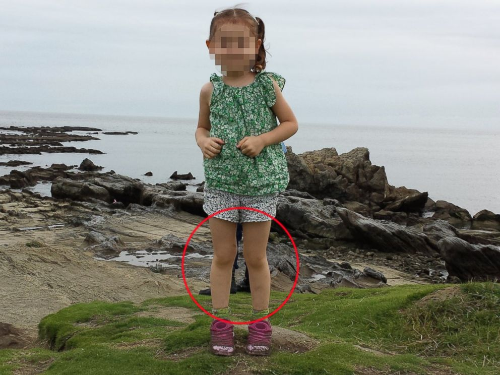 PHOTO: Martin Springalls daughter is pictured here at age 4 on a beach in Zushi, Japan on July 6, 2014.