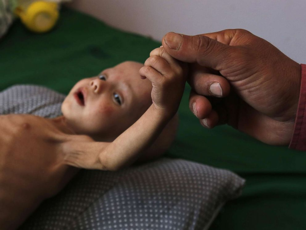 PHOTO:A malnourished Yemeni child receives treatment amid worsening malnutrition in the emergency ward of a hospital in Sanaa, Yemen,Nov. 15, 2017. More than 50,000 children under the age of 15 are at risk of death from severe acute malnutrition.