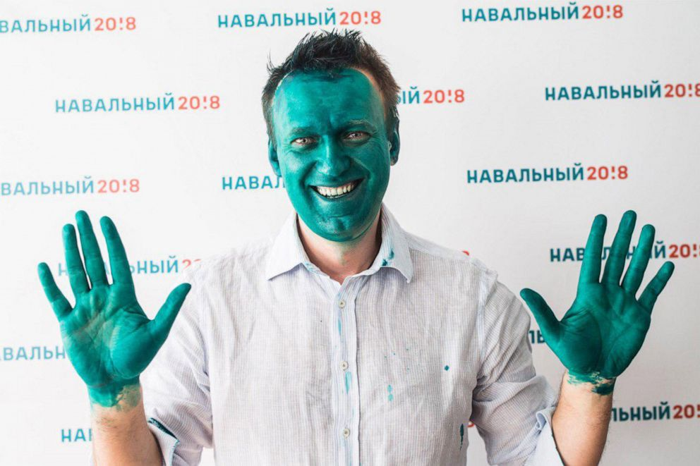 PHOTO: Alexei Navalny, founder of the Anti Corruption Foundation, smiles after a press conference on the opening of a presidential election campaign office in Barnaul, Russia, March 20, 2017, after assailants threw green dye at him.