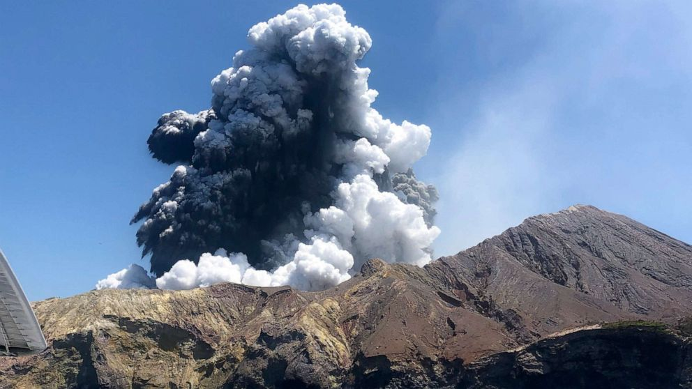 New Zealand orders 1.2 million sq cm of skin from US to treat volcano victims
