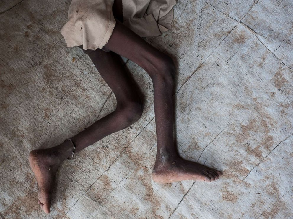 PHOTO: A young boy suffering from severe acute malnutrition lies in the Muna informal settlement, which houses nearly 16,000 IDPs (internally displaced people), in the outskirts of Maiduguri capital of Borno State, northeastern Nigeria, June 30, 2016.