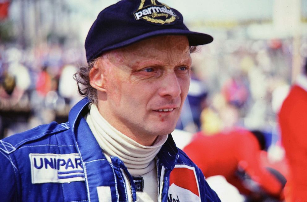 PHOTO: Niki Lauda at the Grand Prix of Long Beach in California in the early 1980s, moments before a fan snatched the hat off his head and ran, only to be caught moments later, and the hat returned.