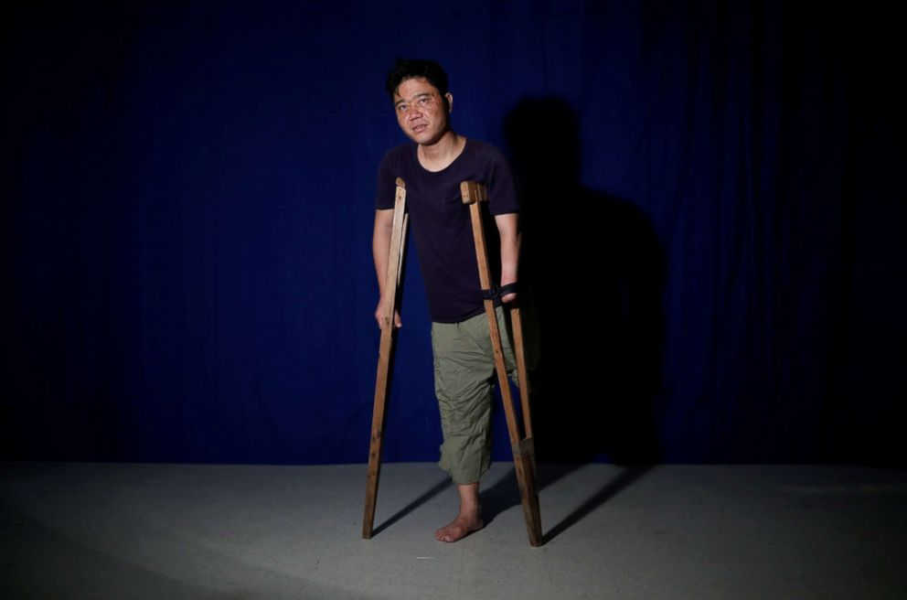 PHOTO: Ji Sung-ho, 35, poses for a photograph with a pair of crutches that he brought with him from the north in Seoul, South Korea, Aug. 13, 2017.