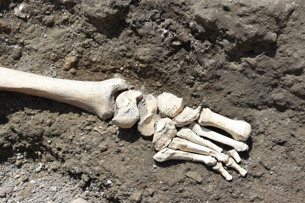 PHOTO: Archaeologists discovered the skeleton of a man at the Roman city of Pompeii who they believe fell while fleeing the volcanic eruption of Mt. Vesuvius in 79 A.D. Skeleton of man possibly crushed running from lava found in Pompeii Skeleton of man possibly crushed running from lava found in Pompeii pompeii 5 ht er 180529 hpEmbed 3x2 992