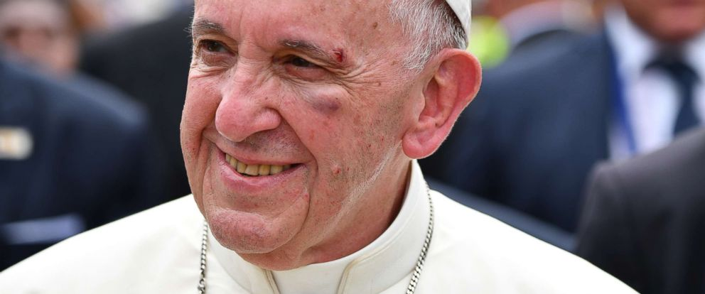 PHOTO: Pope Francis smiles with a bruise on his face after he hit his head on the popemobile, in Cartagena, Colombia, Sept. 10, 2017.