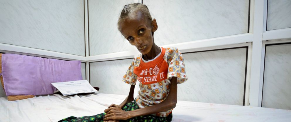 PHOTO: Saida Ahmad Baghili, 18, suffering from severe acute malnutrition, sits on a bed at the al-Thawra hospital in the Red Sea port city of Houdieda, Yemen, Oct. 24, 2016.
