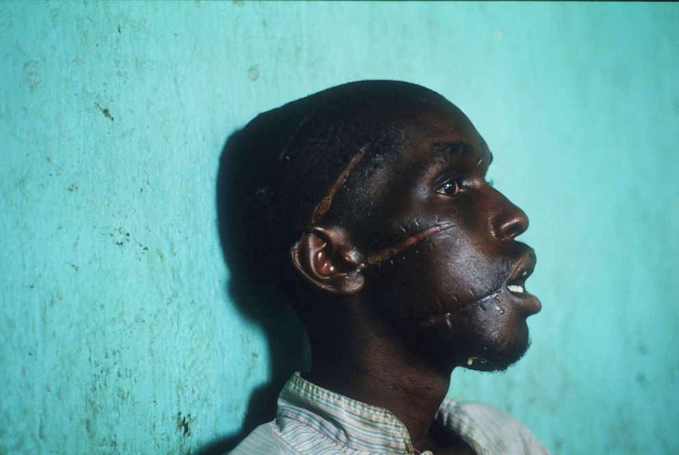 PHOTO: An unidentified Tutsi man displays slashes on his face and head June 3, 1994, in Rwanda.