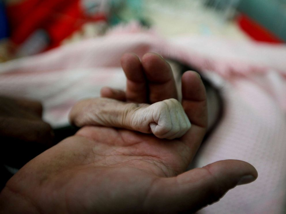 PHOTO: Saleh Hassan al-Faqeh holds the hand of his four-month-old daughter, Hajar, who died of malnutrition at the al-Sabeen hospital in Sanaa, Yemen, Nov. 15, 2018. She was like skin on bones, her body was emaciated, he said.