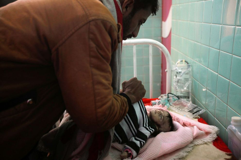 PHOTO: Saleh Hassan al-Faqeh covers the body of his four-month-old daughter, Hajar, who died at the malnutrition ward of al-Sabeen hospital in Sanaa, Yemen, Nov. 15, 2018.