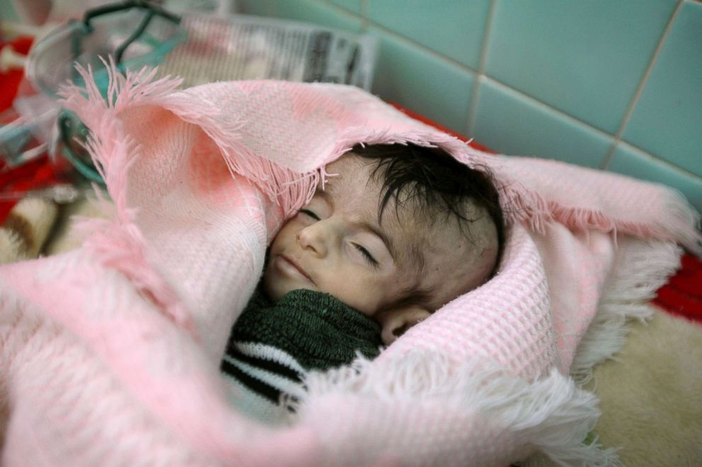 PHOTO: Four-month-old Hajar Saleh al-Faqeh, who died at the malnutrition ward of al-Sabeen hospital, is seen at the hospital in Sanaa, Yemen, Nov. 15, 2018.