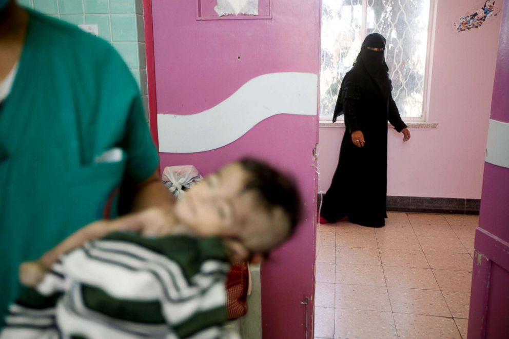 PHOTO: The mother of four-month-old Hajar Saleh Hassan al-Faqeh, who died at the malnutrition ward of al-Sabeen hospital, walks by as a nurse holds her daughters body in Sanaa, Yemen, Nov. 15, 2018.
