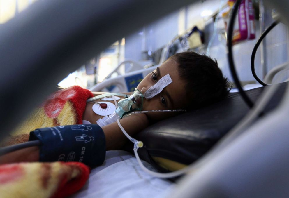 PHOTO: A Yemeni child suffering from a diphtheria infection receives treatment at a hospital in the capital Sanaa, Oct. 31, 2018.