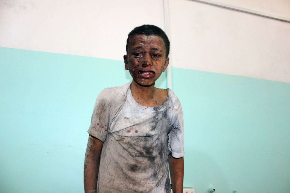 PHOTO: A Yemeni child awaits treatment at a hospital after he was wounded in a reported air strike on the Iran-backed Huthi rebels stronghold province of Saada Aug. 9, 2018.