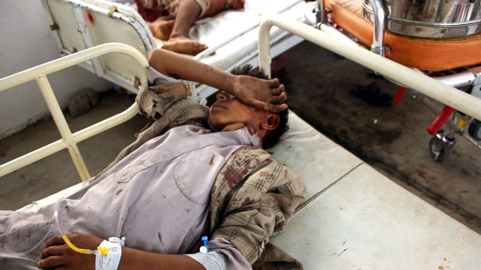 Wounded Yemeni children lay on a bed receiving treatment at a hospital after being injured in an alleged Saudi-led airstrike in the northern province of Saada, Yemen, Aug. 9, 2018.