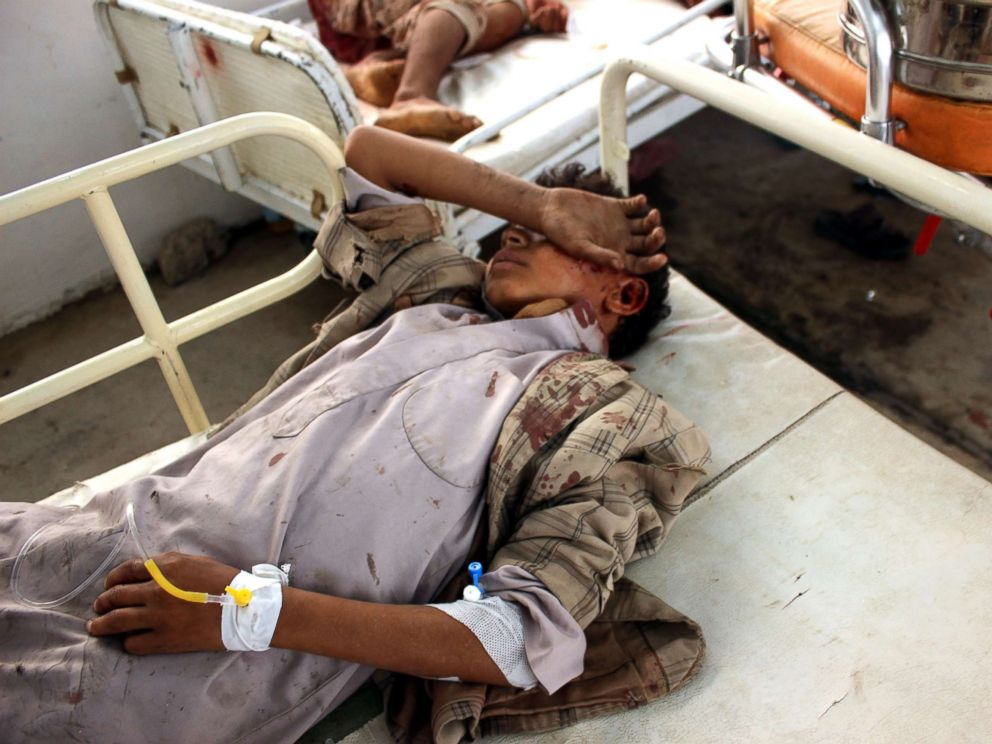 PHOTO: Wounded Yemeni children lay on a bed receiving treatment at a hospital after being injured in an alleged Saudi-led airstrike in the northern province of Saada, Yemen, Aug. 9, 2018.
