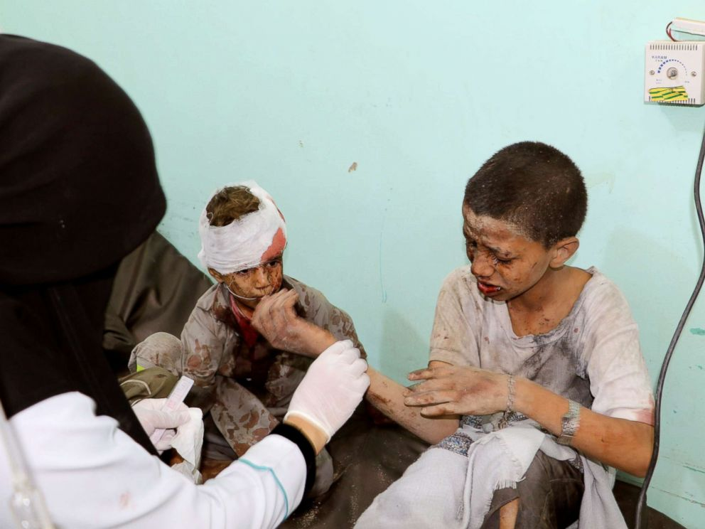 PHOTO: A doctor treats children injured by an airstrike in Saada, Yemen Aug. 9, 2018.