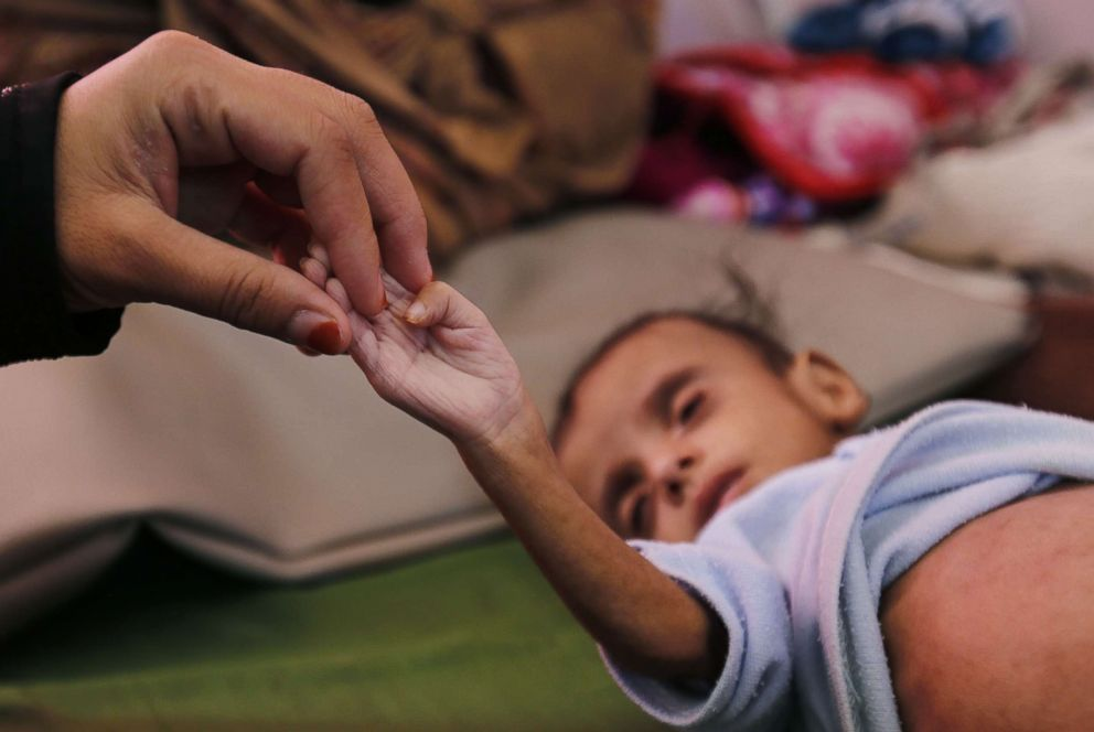 PHOTO: A woman holds a hand of her malnourished child as he receives medical attention at a malnutrition treatment center in Sanaa, Yemen, Nov. 16, 2018.