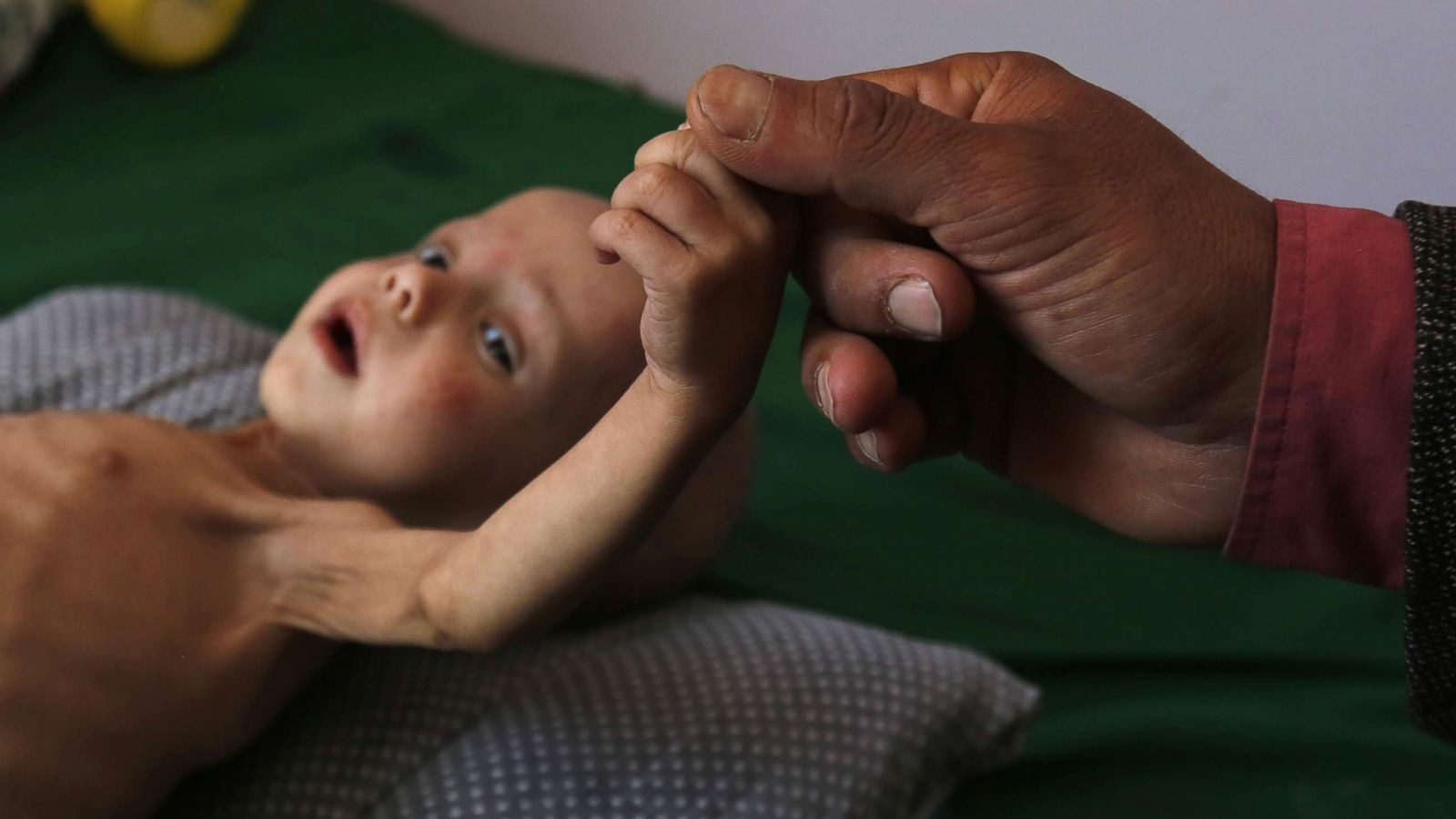 Yemen one of the most dangerous places on earth for children un abc news