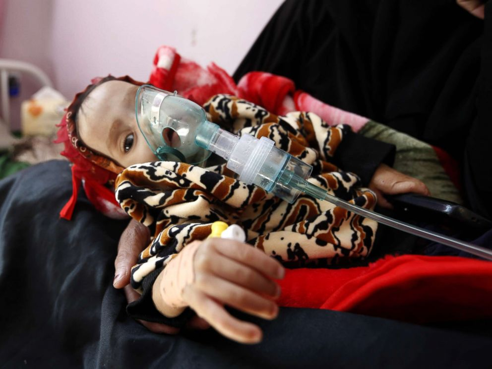PHOTO: A malnourished Yemeni child receives treatment at a hospital in the capital Sanaa, Nov. 22, 2017. The United Nations has warned that war-wracked Yemen faces a mass famine unless aid deliveries are allowed to enter the impoverished country.