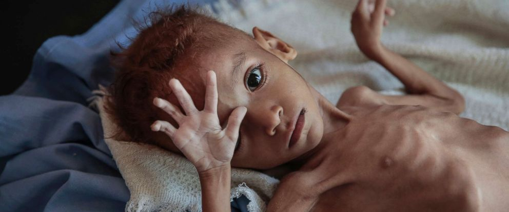 [Image: yemen-hunger-child-ap-ps-181121_hpMain_12x5_992.jpg]