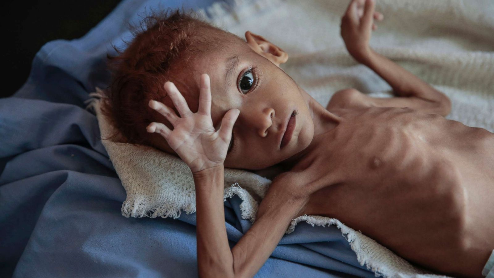 85,000 children in Yemen have starved to death: Save the Children report -  ABC News